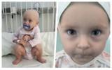 Półtoraroczna Lilka walczy o życie. Pilnie potrzebuje pomocy. Pomóżmy uratować to maleństwo!