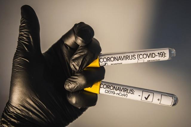 Koronawirus również w gminie Sierakowice - Kaszubskie Centrum Medyczne apeluje o ograniczenie wizyt