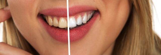 Wybielanie zębów w domu może być równie skuteczne, jak w gabinecie stomatologicznym. Wystarczą odpowiednie kosmetyki, na których nie warto oszczędzać.
