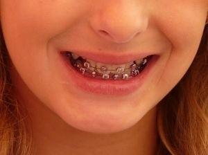 Leczenie ortodontyczne służy zachowaniu zdrowia zębów, przyzębia, stawów skroniowo-żuchwowych.