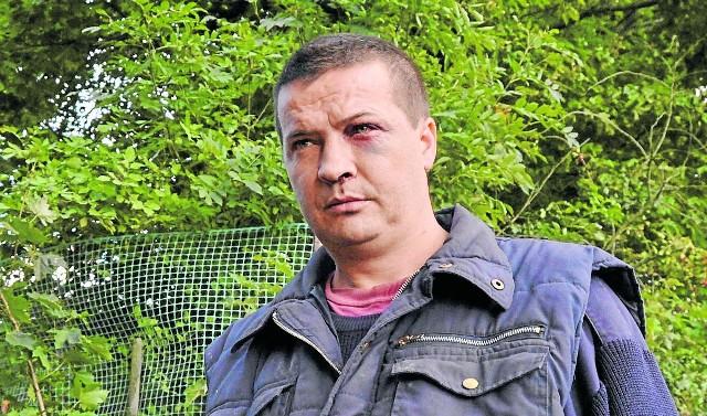 Stanisław Polewik zarzuca funkcjonariuszom pobicie.