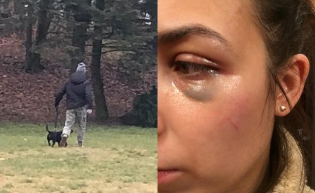 Do incydentu doszło w minioną niedzielę około godz. 13.50 na terenie poznańskiej Cytadeli. Zdaniem poszkodowanej kobiety, w trakcie spaceru jej szczeniak został zaatakowany przez psa jednej z niebezpiecznych ras. Choć kobiecie udało się go uchronić przed odniesieniem ran, to chwilę później sama została zaatakowana, jednak przez właściciela groźnego psa.