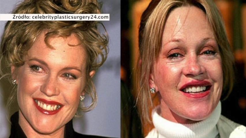 Co się stało z twarzą Melanie Griffith?