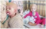 3-letnia Natalia Pytlak z Rogoźna walczy z rakiem. Potrzeba ponad miliona złotych, by uratować życie dziewczynki