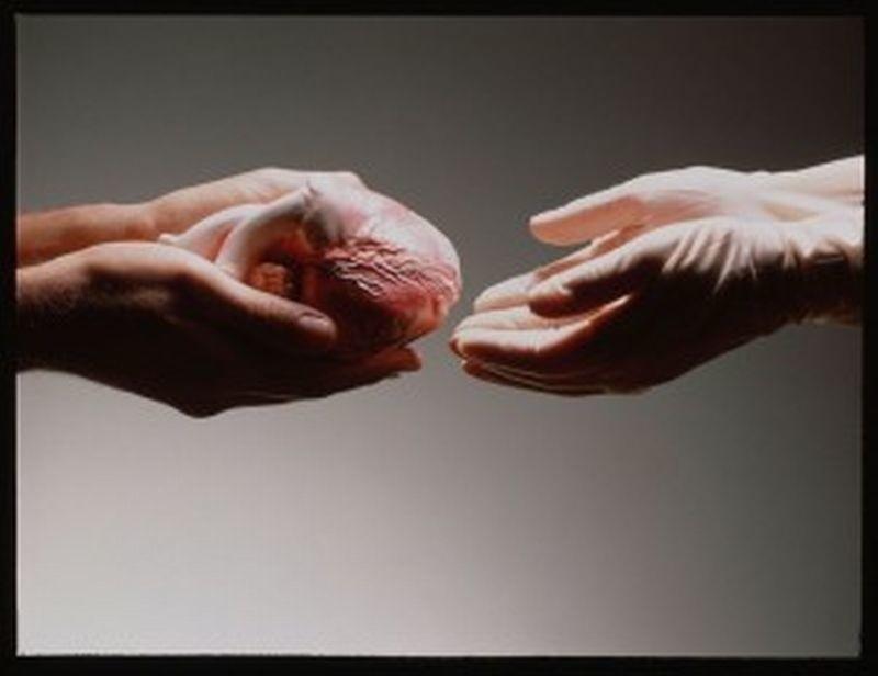 Wyraziłeś Zgodę Na Przeszczep Organów Po śmierci Nic To Nie