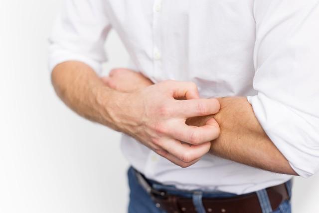 U osób z atopowym zapaleniem skóry, zachorowanie na COVID-19 stanowi ogromne zagrożenie dla zdrowia i życia.