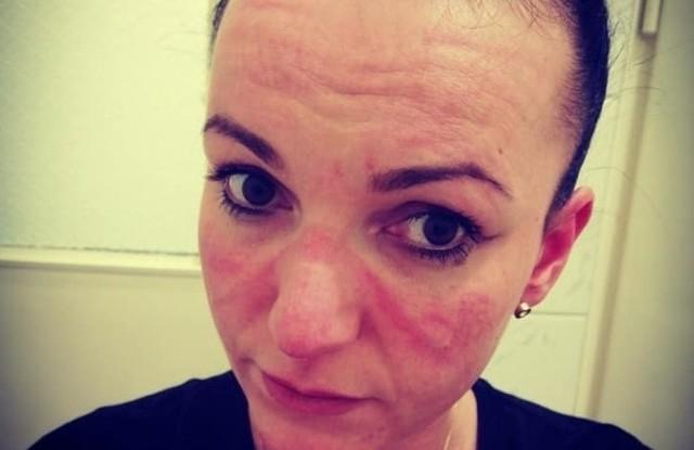 - Tak się wygląda po kilku godzinach wyjazdu do pacjenta covidowego. Zaczerwieniona, poodciskana skóra, suche usta bo o łyku wody możesz zapomnieć.