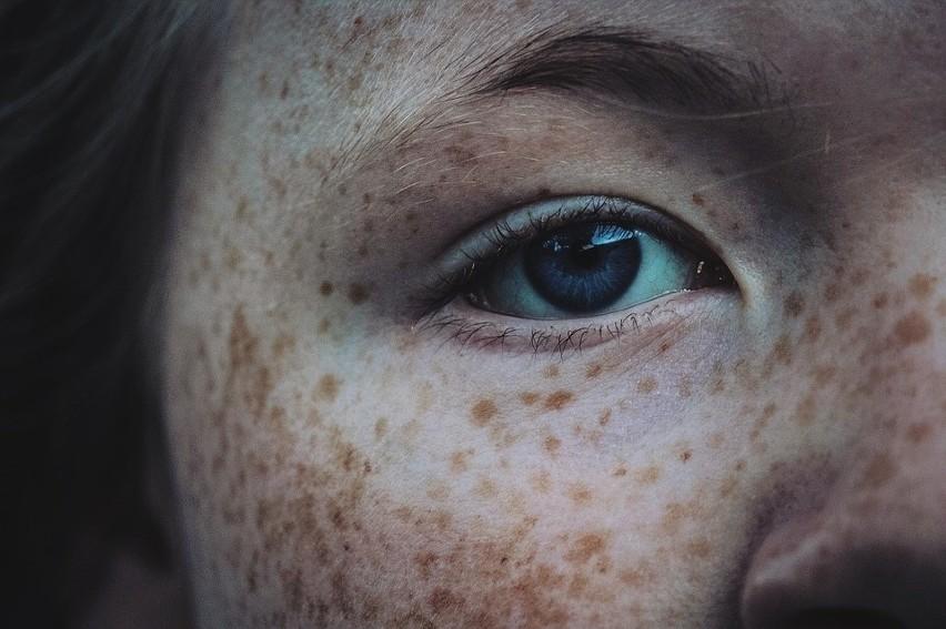 Jesień i zima to najlepszy czas na walkę z przebarwieniami skóry