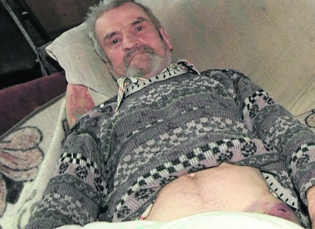 Jan Oniszczuk ze spotkania z żubrem nic nie pamięta. Przytomność odzyskał dopiero po przyjeździe karetki pogotowia. Byka, który wziął go na rogi widział jednak wcześniej