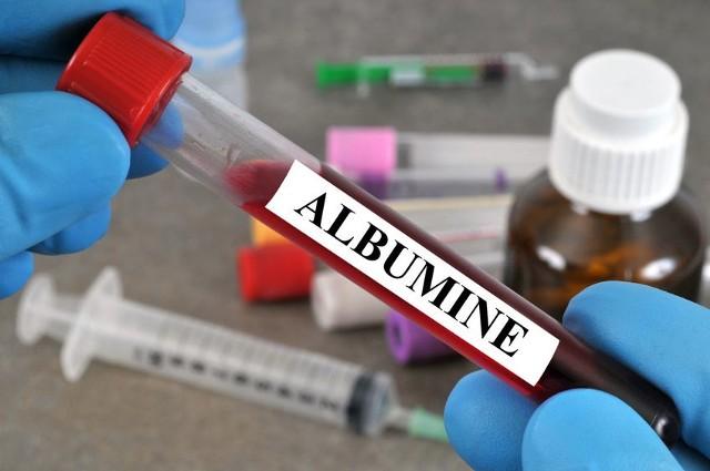 Wskazaniem do wykonania badania albuminy w krwi lub w moczu jest podejrzenie nieprawidłowości w funkcjonowaniu wątroby.
