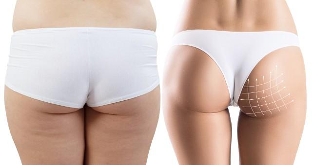 Liposukcja to zabieg pozwalający odessać nadmiar tkanki tłuszczowej oraz wymodelować sylwetkę. Zazwyczaj wykonuje się ją w rejonie brzucha, pośladków, policzków, podbródka, bioder, kolan, szyi, ud oraz ramion.