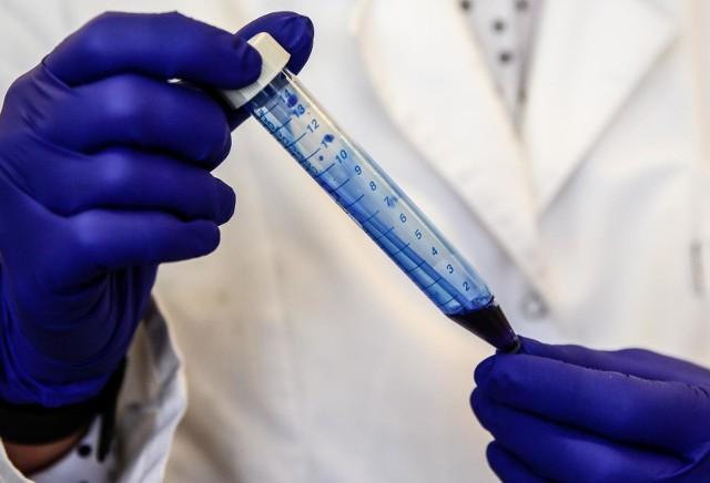 Koronawirus Opolskie. 62 nowe przypadki COVID-19 w regionie. W kraju ponad 2,5 tysiąca [RAPORT 3.05.2021]