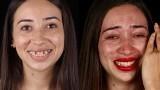 Jak nowe zęby zmieniają ludzi? Brazylijski dentysta naprawia więcej niż uśmiech: metamorfozę widać w oczach
