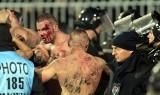 Krwawe derby Belgradu. Chuligani bili się odpalonymi racami! [ZDJĘCIA, WIDEO]