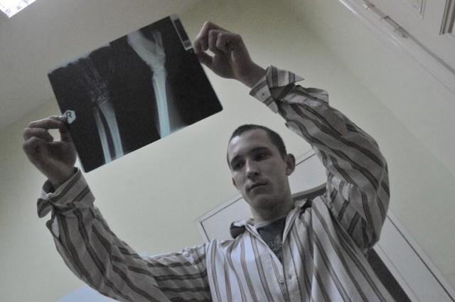 - Na zdjęciu widać, że nadgarstek jest złamany - mówi Piotr Rakiel. Ale specjalista musi je najpierw chcieć obejrzeć