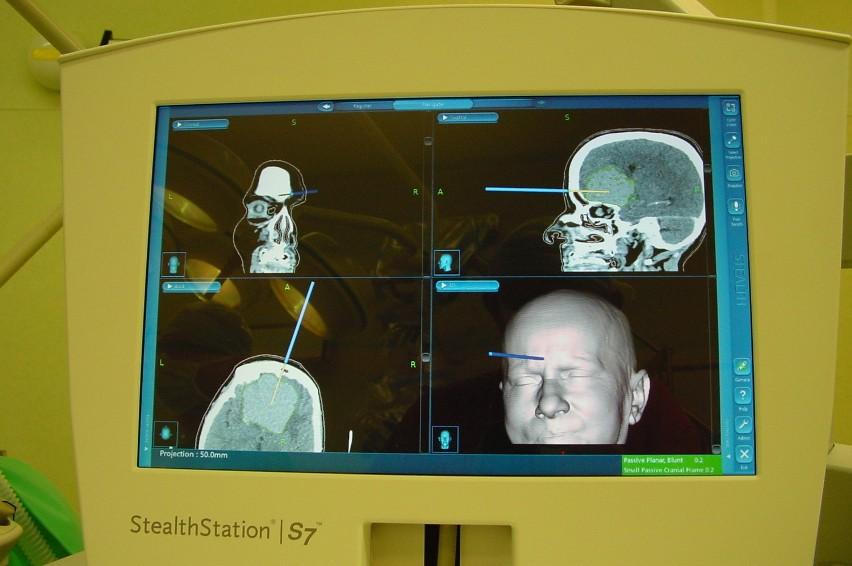 Bytomscy neurochirurdzy mają neuronawigację