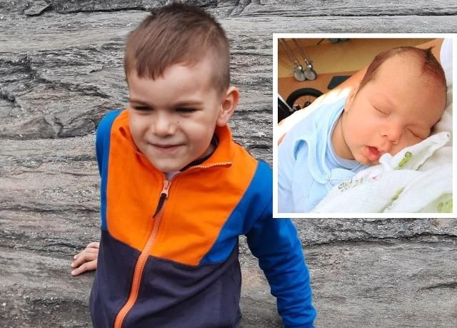 Staś w lipcu skończy 5 lat. Małe zdjęcie zrobiono, kiedy miał zaledwie kilka tygodni i przyszło mu walczyć z potwornym guzem w oczku.