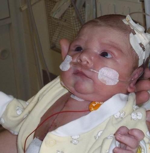 Już następnego dnia po operacji Antosia została odłączona od respiratora i zaczęła oddychać samodzielnie.