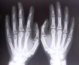 Czas pracy radiologów wg nowych przepisów. Kto ile ma pracować, a kto ile płacić