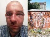 Przemysław Witkowski brutalnie pobity, ma złamany nos. Policja dalej szuka sprawcy i apeluje o pomoc. O które napisy poszło? (ZDJĘCIA)