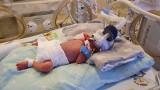 W Poznaniu urodziły się pięcioraczki. Najmniejsze z nich waży zaledwie 680 gramów. W porodzie uczestniczyło 30 osób