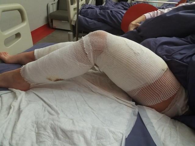 Tego samego dnia, gdy nastolatka trafiła do szpitala, przeszła operację. Jej ciało było poważnie poranione przez kły psów