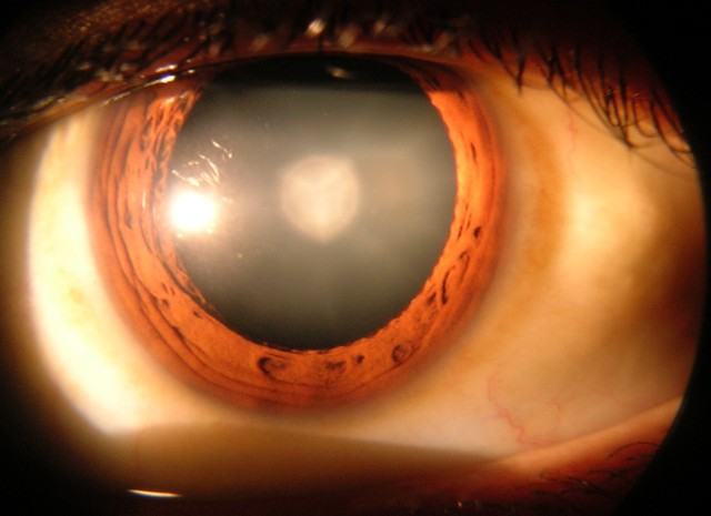 Zaćma to postępujące zmętnienie oka, będące główną przyczyną ślepoty na świecie