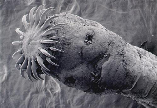 Larwy tasiemca giną w temperaturze 56 stopni Celsjusza. Ryzyko zakażenia pasożytem można ograniczyć dzięki obróbce termicznej pożywienia, unikaniu spożywania wody z nieznanych źródeł oraz dbałości o higienę osobistą.