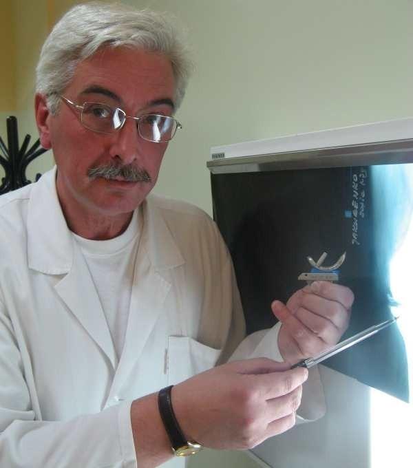 - Dzięki takiej jednoprzedziałowej protezie kolana pacjenci szybko odzyskują sprawność - mówi ordynator Michał Tabiszewski