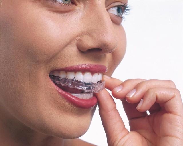Coraz częściej, zamiast aparatem ortodontycznym, zęby można wyrównać przezroczystymi, wyjmowanymi i miękkimi nakładkami