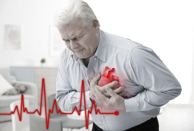 Zawał serca stanowi jedną z najczęstszych przyczyn zgonów na świecie.