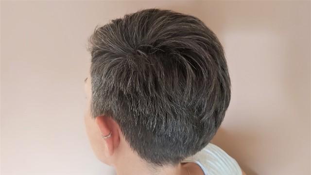 Siwe włosy od naturalnie napigmentowanych różnią się nie tylko kolorem, ale również strukturą: są szorstkie i chropowate, przez co też mniej przyjemne w dotyku. Przedwczesnym siwieniem nazywamy sytuację, gdy siwe włosy pojawiają się przed 20. rokiem życia. Głównymi przyczynami są choroby (anemia, choroby autoimmunologiczne związane głównie z tarczycą oraz genetyczne), niedobory i stres oksydacyjny.