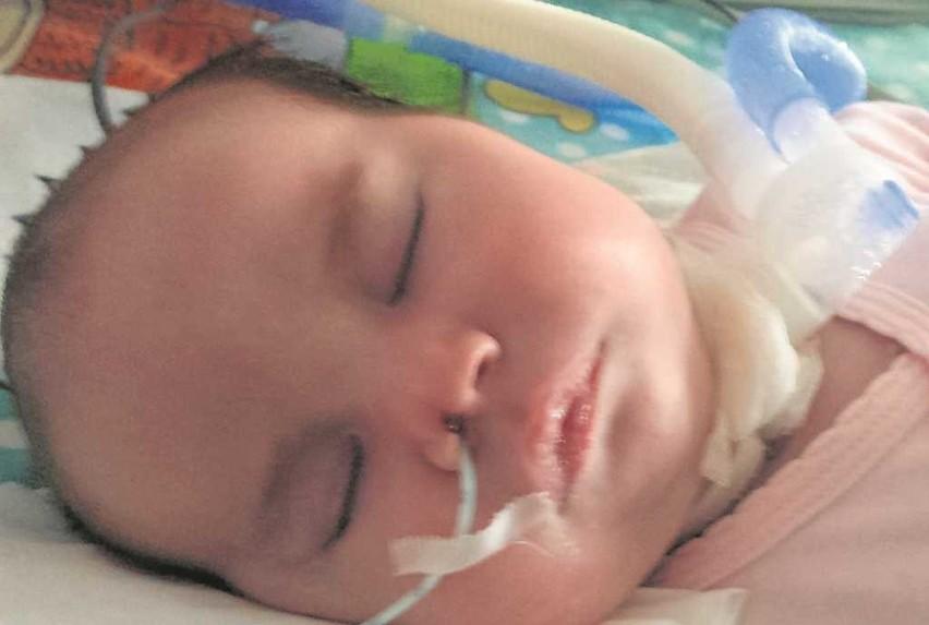 Dziewczynka musi być karmiona sondą, w oddychaniu pomaga jej respirator