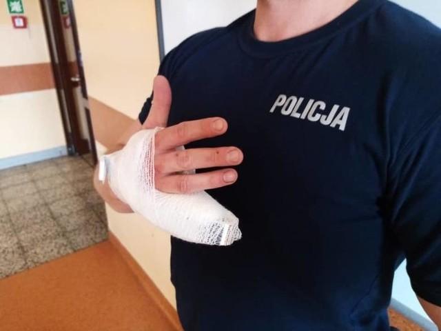 Marcin Sz., który w lutym 2019 roku odgryzł policjantowi kawałek palca, został skazany na 4 lata więzienia.