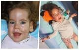 Kręgosłup Ani krzywi się i miażdży jej narządy. 10-latkę można uratować, ale potrzeba ponad 2 miliony złotych