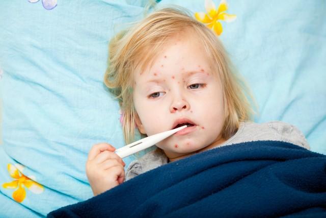 Odra jest chorobą zakaźną wieku dziecięcego, charakteryzującą się wysoką zaraźliwością.