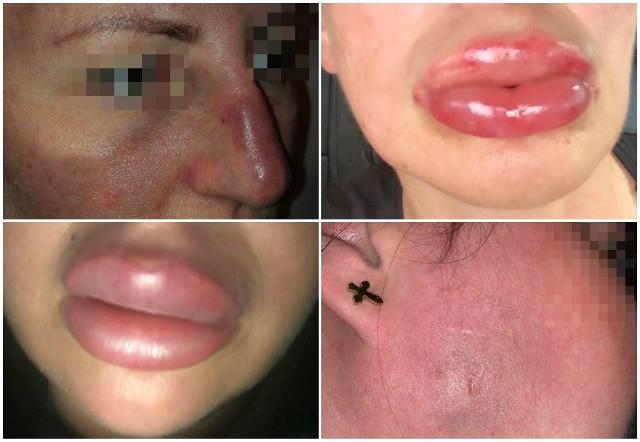 Na początku tego roku opisaliśmy historie kobiet, które twierdzą, że zostały skrzywdzone przez różnych kosmetologów. Tak wyglądały ich twarze po zabiegach u kosmetologów w całej Polsce.