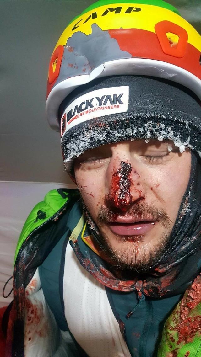 - Kilkadziesiąt metrów pod obozem pierwszym dostałem w głowę dużym kamieniem. Skończyło się na złamanym nosie i sześciu szwach - napisał na swoim FB Adam Bielecki.