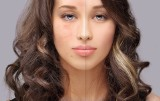 Sposoby na krosty na twarzy. Jak skutecznie pozbyć się pryszczy, krostek i wykwitów skórnych? Skąd biorą się wypryski na naszej skórze?
