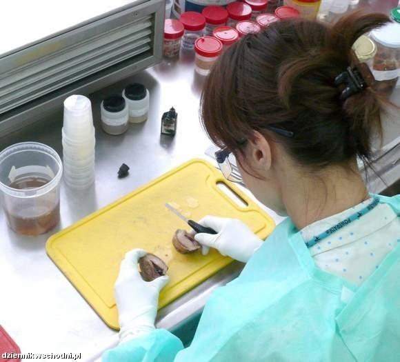 Pobrana tkanka trafia do pracowni patomorfologii.