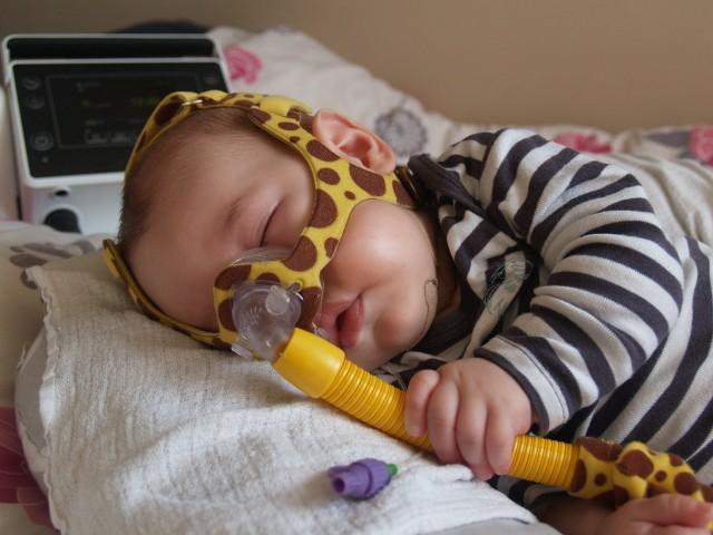 Mały Patryś walczy o życie! Trzeba uzbierać 3 miliony w 3 dni