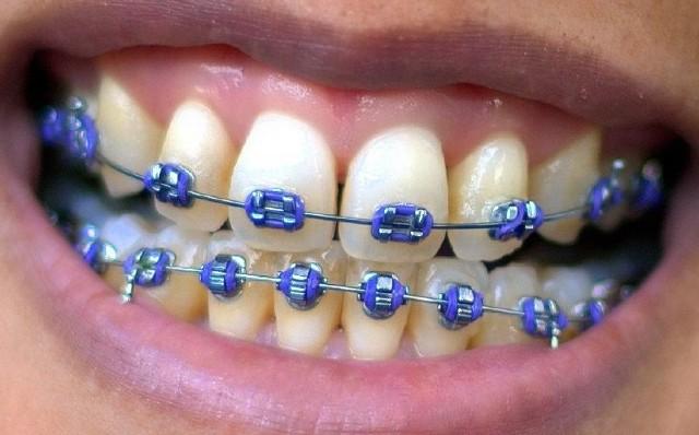 Aparaty ortodontyczne DIY - niebezpieczny trend wśród dzieci i młodzieży! Zobacz, jakie mogą być jego konsekwencje! Czy Twoje dziecko to robi?Uwaga! Ostatnie zdjęcie jest drastyczne i pokazuje, co może spotkać osoby, które decydują się na aparaty ortodontyczne DIY!