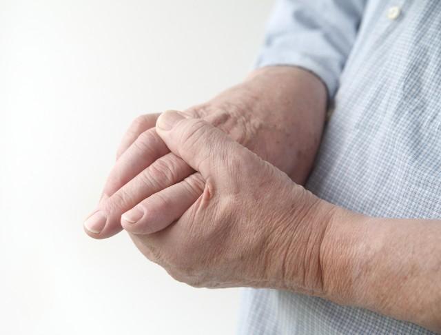 Reumatoidalne zapalenie stawów często dotyczy dłoni, ograniczając ich sprawność i powodując ból podczas wykonywania codziennych czynności. Trudność zaczyna wtedy sprawiać nawet odkręcenie kranu czy podanie ręki.