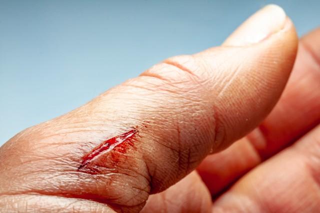 Zakażenie rany przebiega różnie, w zależności od tego, w jaki sposób drobnoustroje przedostały się do organizmu oraz jakiego typu są to patogeny.