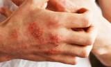 """Nadciąga """"supergrzyb"""" - atakuje chorych na Covid-19. Kto jest narażony najbardziej?"""