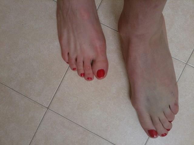 Stłuczona stopa Justyny Kowalczyk