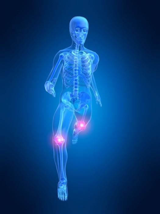 Ból stawów kolanowych zwykle zaczyna się po pięćdziesiątce