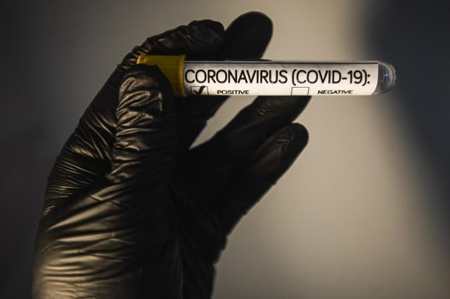 Mężczyzna, który w czwartek (19 marca) uciekł ze szpitala zakaźnego w Zgierzu, jest zakażony koronawirusem - informuje TVN24.CZYTAJ DALEJ NA NASTĘPNYM SLAJDZIE