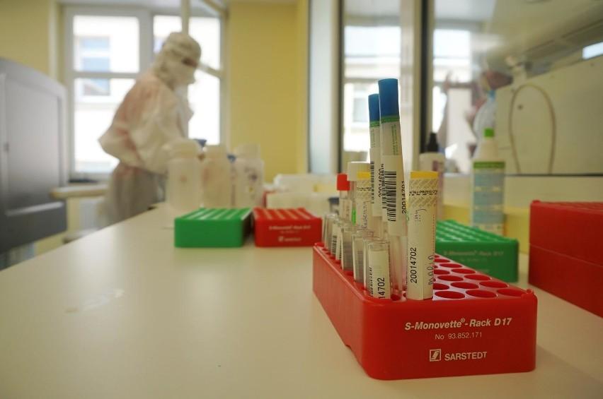 Od początku epidemii w woj. lubelskim 890 osób zachorowało na koronawirusa