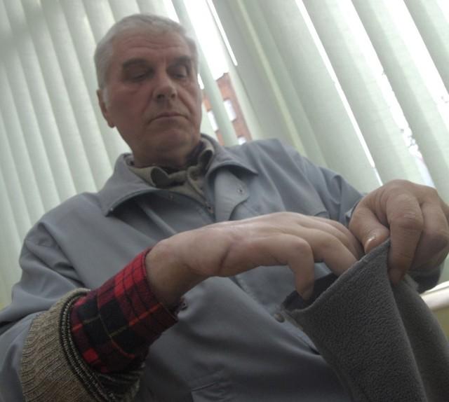 Jerzy Myślak pokazuje rękę zmiażdżoną podczas czerwcowego wypadku.